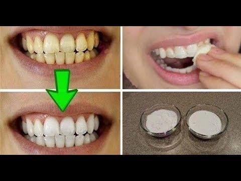 Gwarancja! Wybiel Swoje żółte Zęby W Mniej Niż 2 Minuty