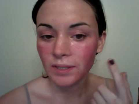 Video Diary for CO2 Fractional Laser for acne scarring (Day 1 of Recovery)