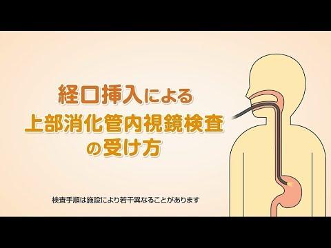 「経口挿入による上部消化管内視鏡検査の受け方」(オリンパス「おなかの健康ドットコム」)