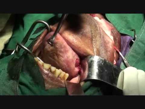 Tongue resection - Hemiglossectomy for youtube