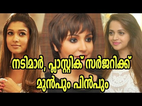 Actresses Before And After Plastic Surgery | Filmibeat Malayalam thumbnail