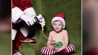 Santa takes viral photo with 4-year-old boy with feeding tube