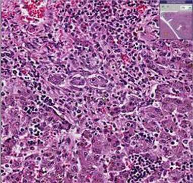 Histopathology Liver--Congenital cytomegalovirus disease