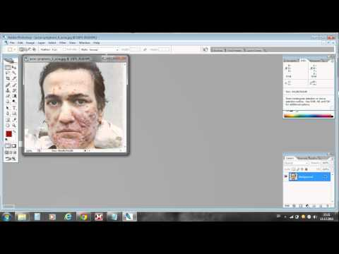 0 Photoshop CS2™ How to remove pimples or acne (Tutorial