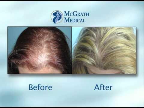 McGrath Medical | Dr. Dan McGrath | Hair Transplant Surgeon | Austin, TX