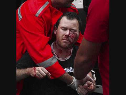 las peores faltas del futbol lesiones del futbol fracturas