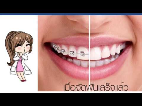 ขั้นตอนการเริ่มต้นจัดฟัน