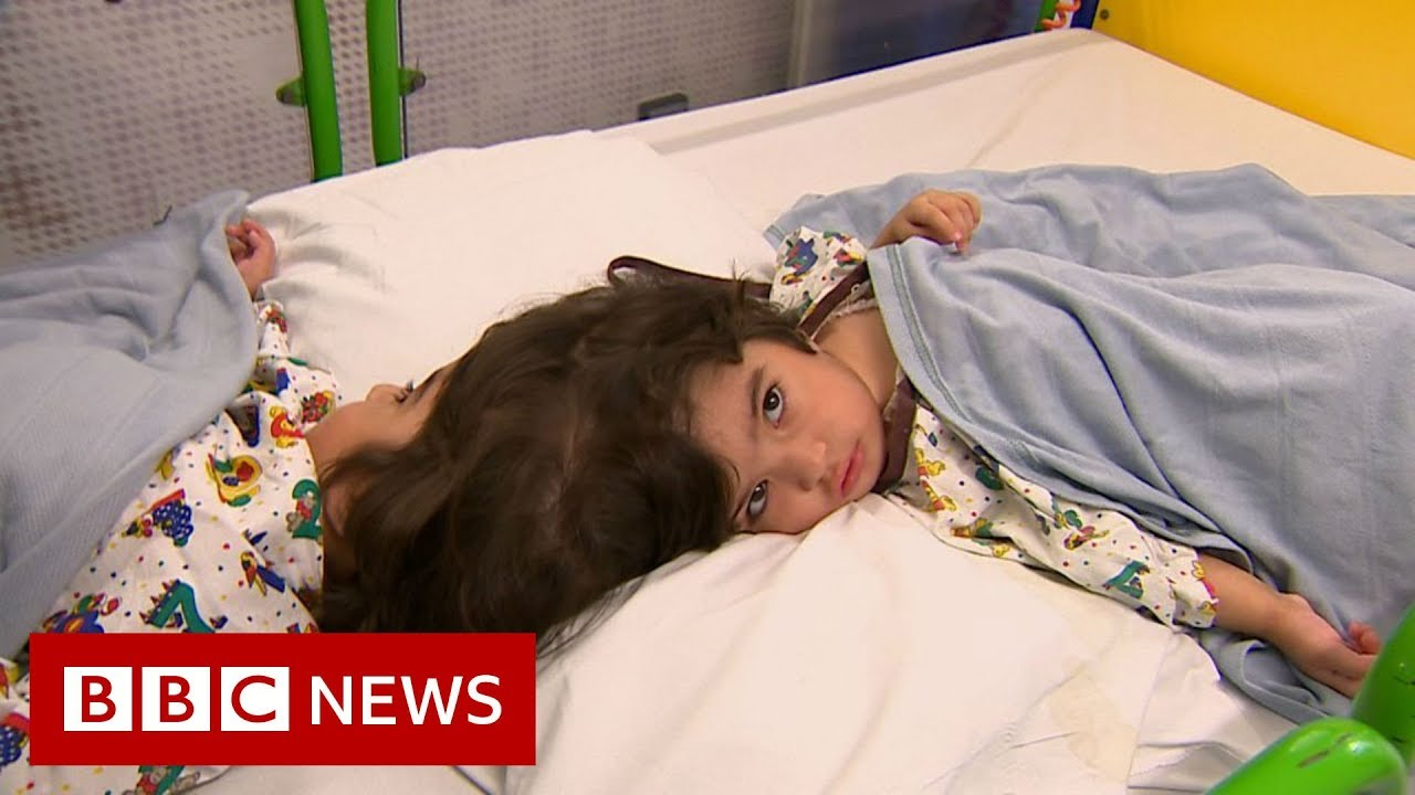 How doctors separate twins joined at the head - BBC News