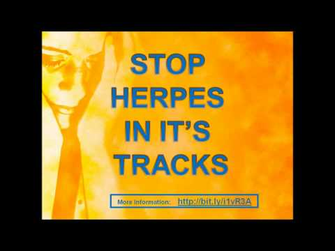 how to avoid herpes outbreaks