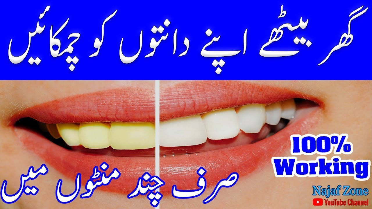 11 Easy Ways To Whiten Your Teeth At Home 11 Easy Ways To Whiten Your Teeth At Home new picture