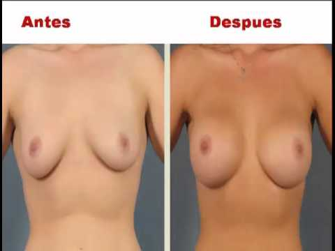 Más Busto sin cirugías, método natural para aumentar busto