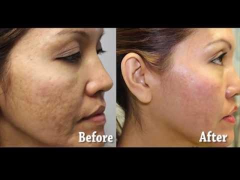 Asian Female Acne Scar Resurfacing