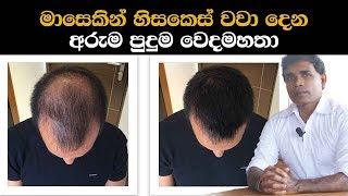 මාසෙකින් හිසකෙස් වවා දෙන අරුම පුදුම වෙදමහතා   Hair growth ayurvedic treatment By Doctor Dayashantha
