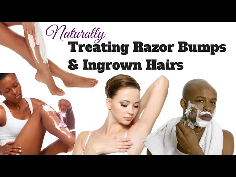 Treating Razor Bumps & Ingrown Hair