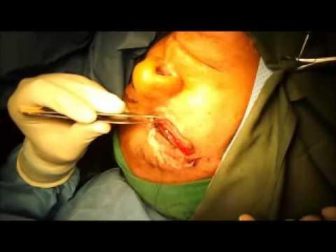 عملية تجميل وترميم الجفون والعيون.wmv