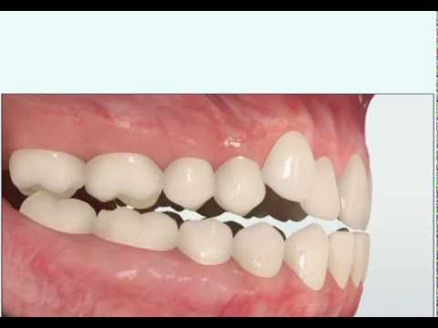 Cross Bite - Dr. Matthew David McNutt, Orthodontist