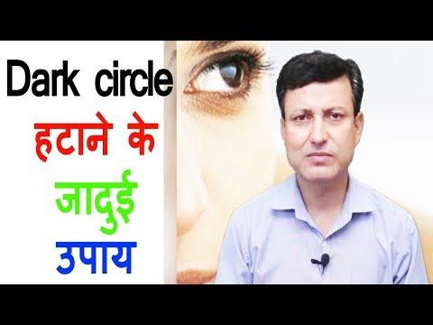 Dark circle हटाने के जादुई उपाय | How to remove Dark circle |  Home Remedy of Dark Circle.