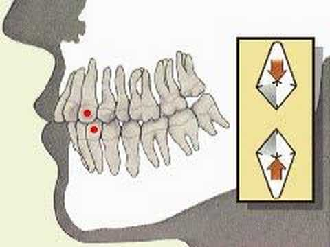 How the Body Works : The Permanent Teeth