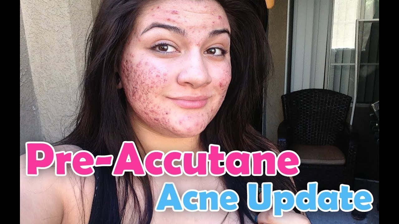 does accutane stop cystic acne