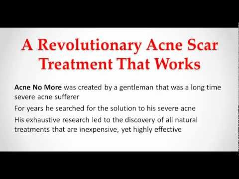 Acne Scar Treatment - Eliminate Your Acne Scars
