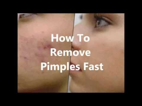 How To Reduce Swelling Of Pimple Fast