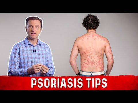 scalp psoriasis diet
