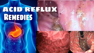 Acid reflux / how to stop acid reflux / dry cough