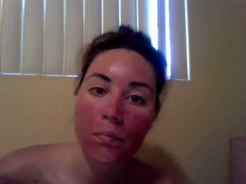 Acne treatment Levulan: Day 2