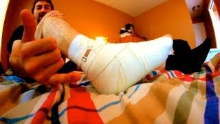 HOW TO HEAL A SPRAINED ANKLE THE EASIEST WAY TUTORIAL