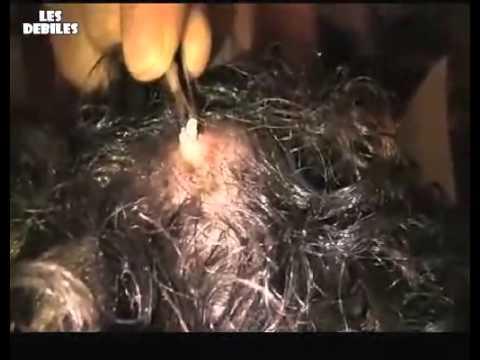 Cet Homme a un vers sous la peau ! Beurk ! - YouTube