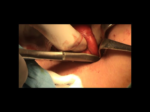 Thyroglossal Cyst excision.wmv