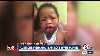1-year-old boy severely injured at  daycare