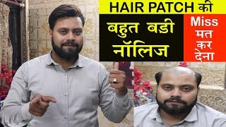 Amazing  knowledge | in hair patch system | by delhi hair fixing | call us – 9873152223
