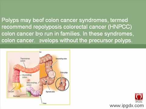 Colon Cancer Prognosis