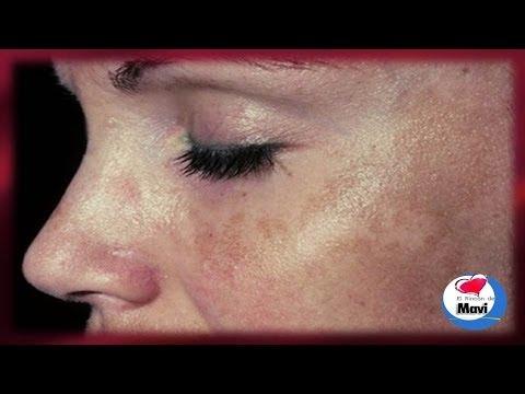 Como eliminar las manchas solares o marrones de la piel - Cuidados de la piel