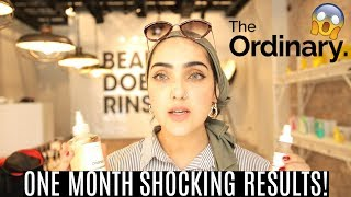 I Tried THE ORDINARY SKINCARE For ONE MONTH! *SHOCKED* ~ Immy