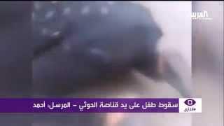 #أنا_أرى : وحشية قناصة الحوثي تغتال الاطفال وتمنع انقاذهم