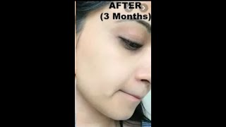 How to Brighten Skin, Reduce Acne Scars, Discoloration, Uneven skin tone   Home Remedies