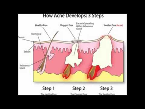 Acne Home Remedies How To Heal Acne Using Home Remedies