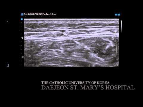 Ultrasound Guided Sural Nerve