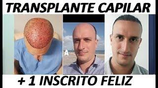 Transplante CAPILAR 5 meses ANTES e DEPOIS - Implante capilar resolve? Vale a pena fazer?