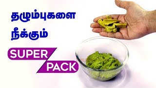 How to Remove Chicken pox Scars in Face? - Tamil Beauty Tips