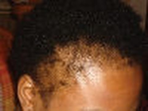 Know The Truth About Jamaican Black Castor Oil for Hair Growth.