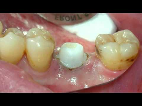Los Angeles Implant Dentist 8-13-s