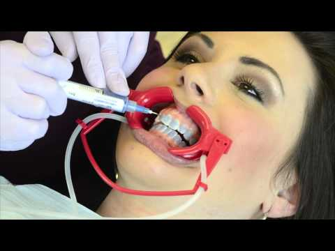 Getting Braces the Easy Way