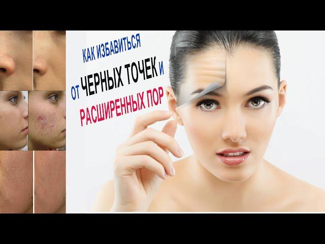 КАК ИЗБАВИТЬСЯ ОТ ЧЕРНЫХ ТОЧЕК И РАСШИРЕННЫХ ПОР/ Уход за жирной, проблемной,комбинированной кожей