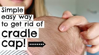 HOW TO GET RID OF CRADLE CAP IN ONE TRY! || NEWBORN