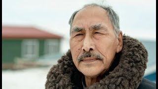 Inuit break silence on skin graft experiments