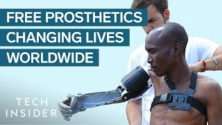 Meet The 24-Year-Old Whose Prosthetic Limbs Are Changing Lives