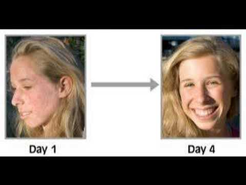 Acne Free In 3 Days - (Natural Cure)